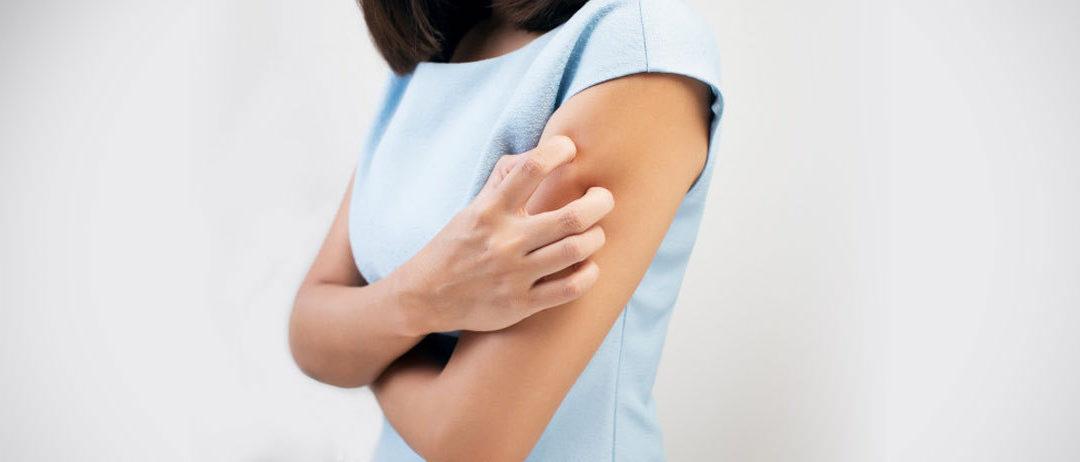 Wpływ nietolerancji pokarmowych IgG-zależnych na przebieg atopowego zapalenia skóry